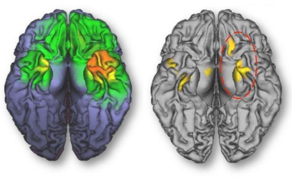 美研究发现手机辐射可增加大脑活动