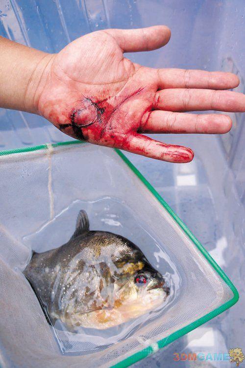 柳州柳江河食人鱼连袭2人 伤者手掌血肉模糊
