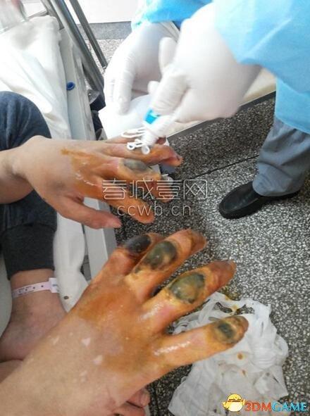 <b>戒网瘾少年被吊单杠造成手指坏死:只因偷吃饼干</b>