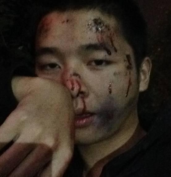 男子省钱买来iPhone 6炫富 遭到抢劫并被打成猪头