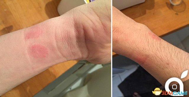 想戴Apple Watch?买之前先确认自己不对镍过敏