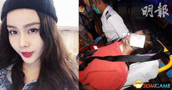 香港19岁女模特遭利剪袭击 疑太漂亮而遭人嫉妒