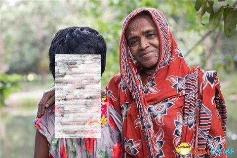 """印度惊现""""无脸""""女孩 整脸长满肿瘤五官已无法辨识"""