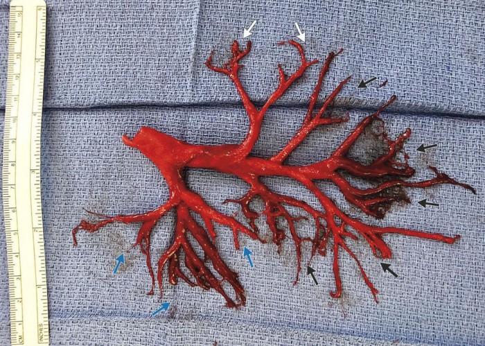 美国36岁男子因病剧烈咳嗽 竟然咳出支气管形状血栓