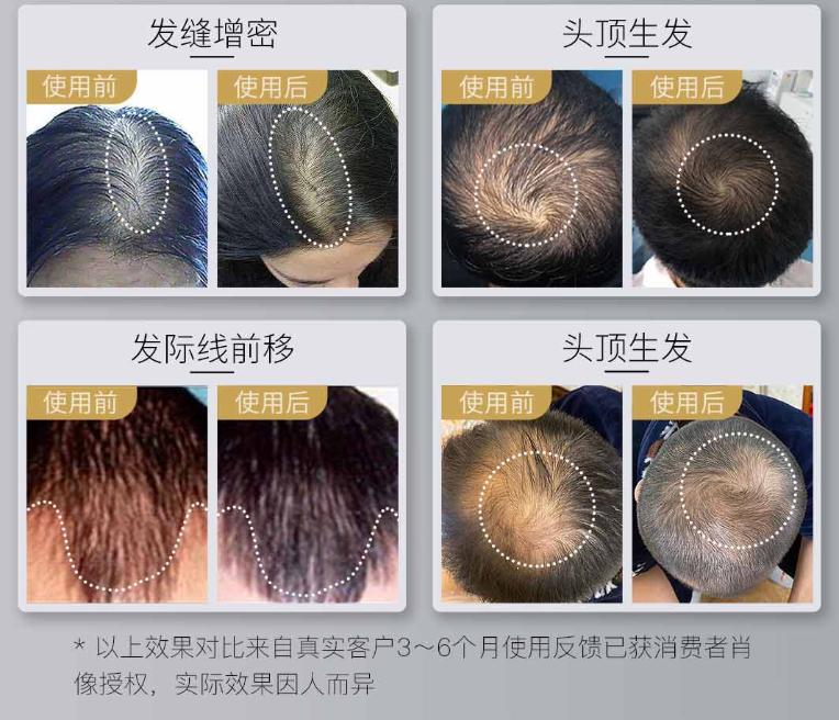 小米有品众筹lllt激光生发帽:仅12周长出新发